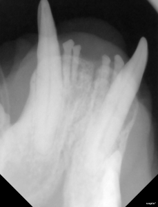This is the lower left canine tooth that has bone loss around the root indicating severe periodontal                   disease and infection.
